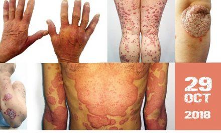 Societatea Română de Dermatologie atrage atenţia cu privire la consecinţele severe ale psoriazisului