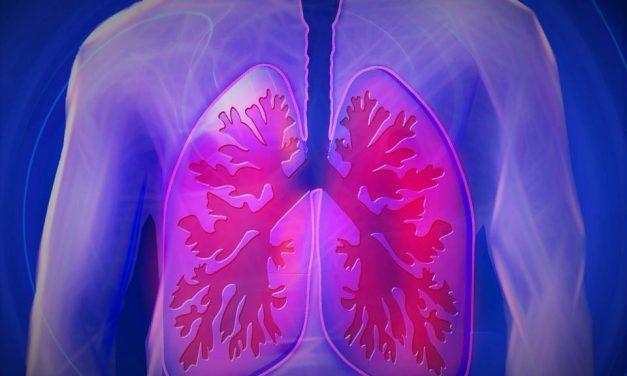 1 august, Ziua Internațională de Luptă împotriva Cancerului Pulmonar. Proiect pentru dublarea supraviețuirii
